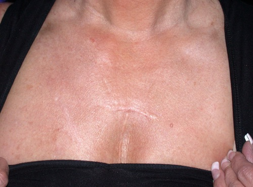 Before and after laser skin resurfacing neck and chest IPL by Dr. BCK Patel MD, FRCS