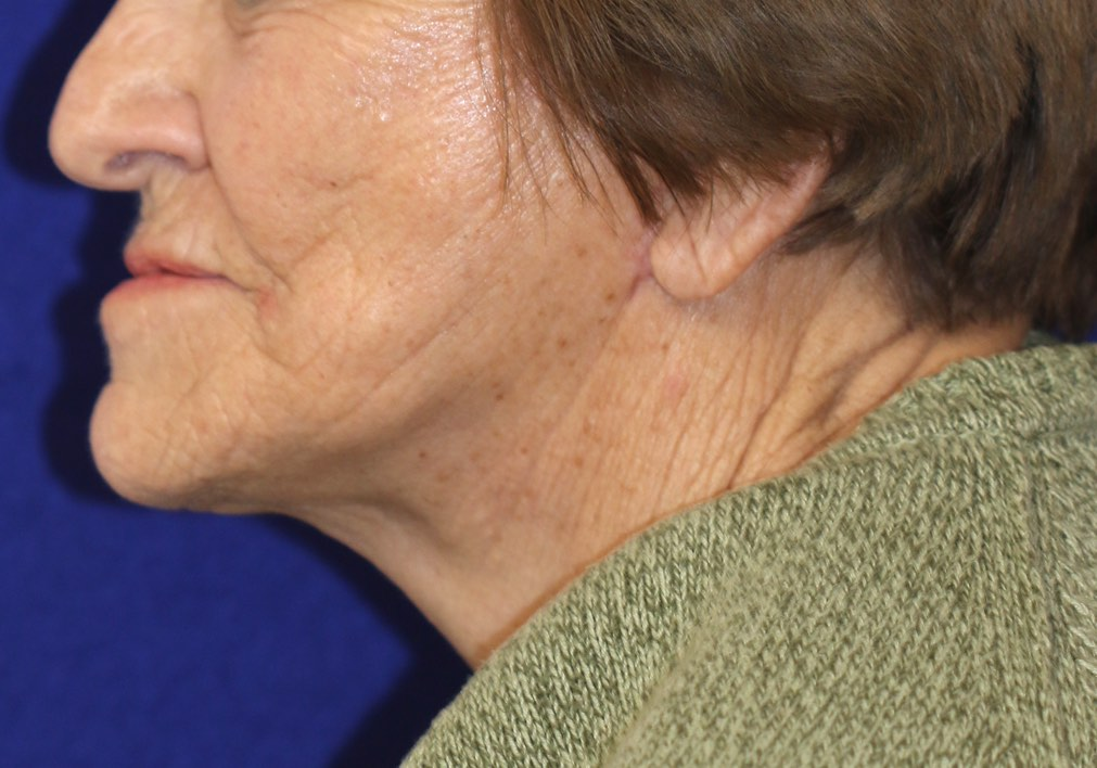 Nice improvement in the lower face, jawline and neck after a properly performed lower facelift and necklift by Dr. BCK Patel MD, FRCS of Salt Lake City