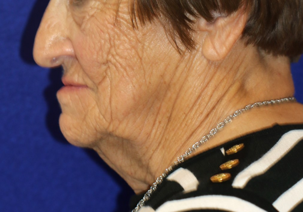 Aging of the lower face, jawline and neck in an older lady