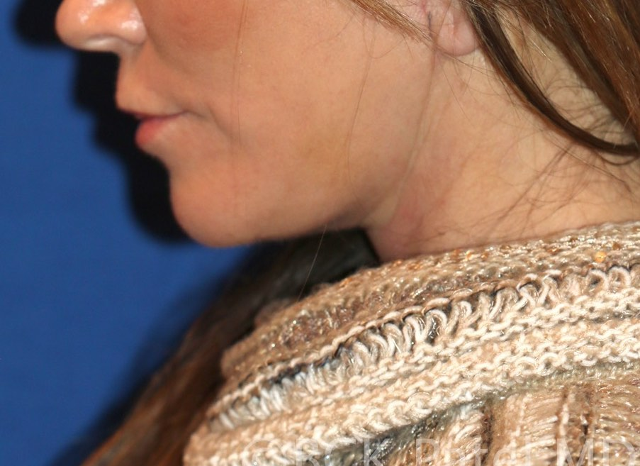 Facelift and necklift by Dr. BCK Patel MD, FRCS