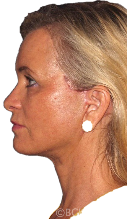 Postoperative appearance after a beautiful facelift and necklift by Improved appearance of the lower face, jawline and neck with a facelift by Dr. BCK Patel MD, FRCS Dr. BCK Patel MD, FRCS of Salt Lake City and St. George