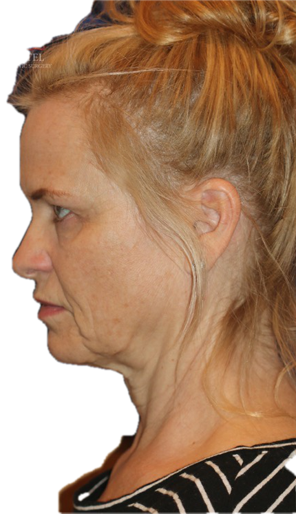 Aging changes in a female in her 50s