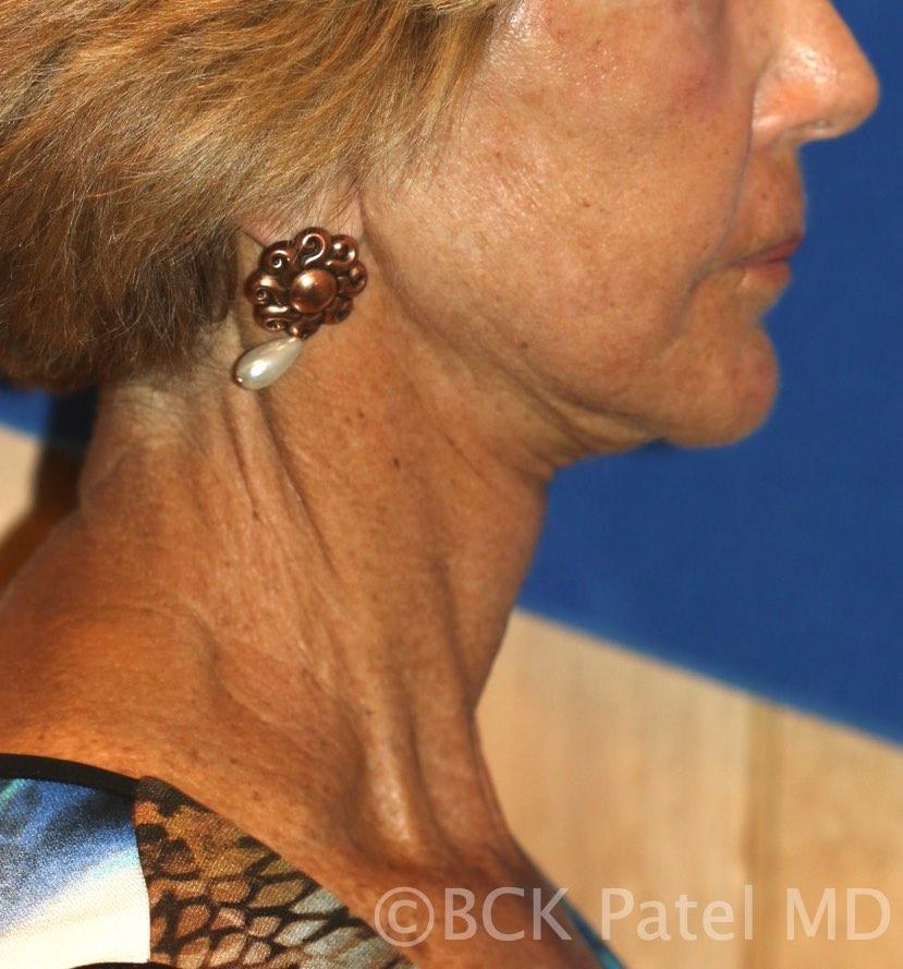 Necklift postoperative view BCK Patel MD