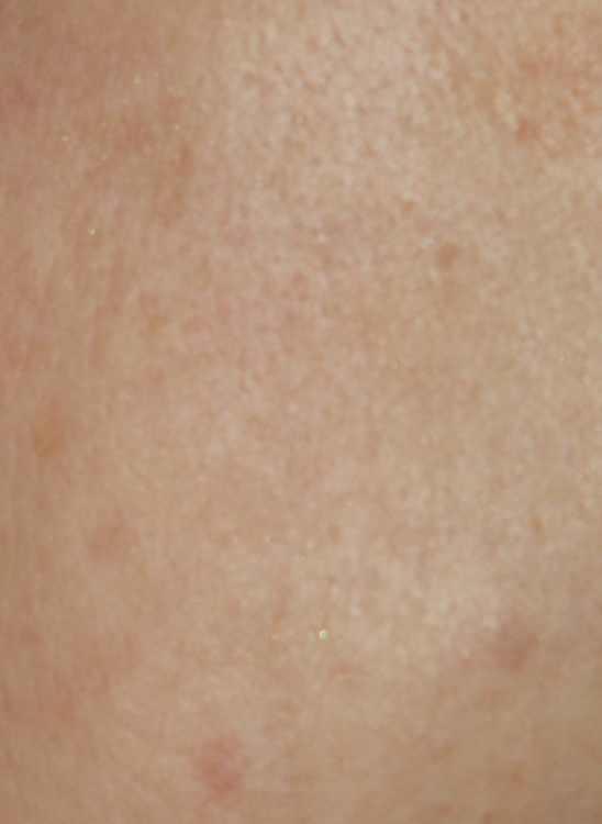 Carbon Peel: Reduction of pores on the face with the laser