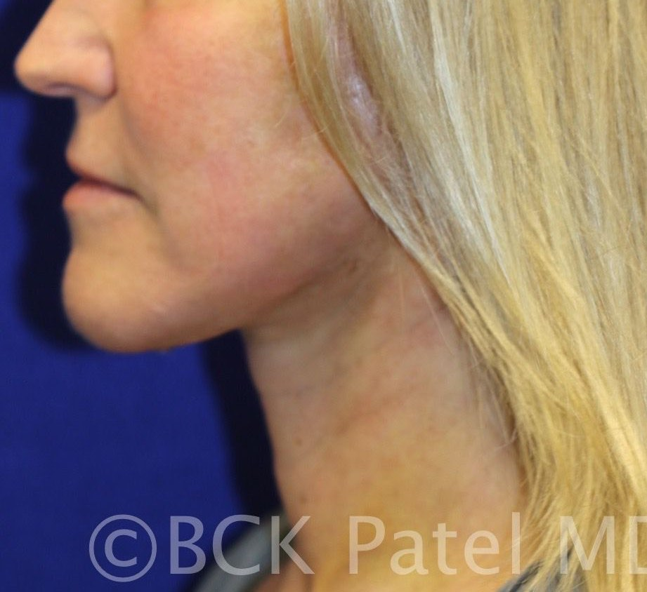 Midi facelift: appearance after surgery