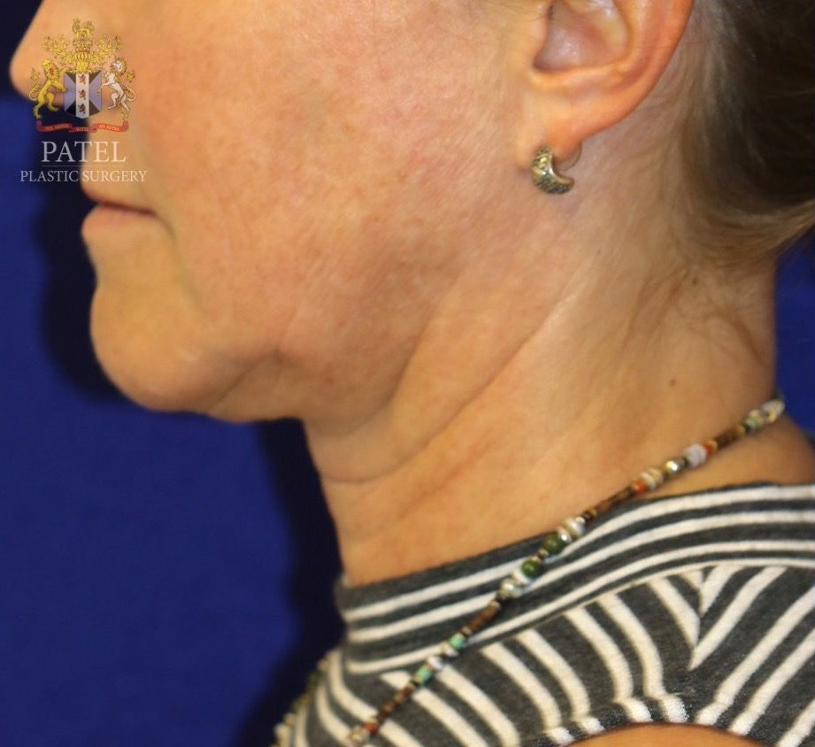 Aging of the lower face, jawline and neck in a female