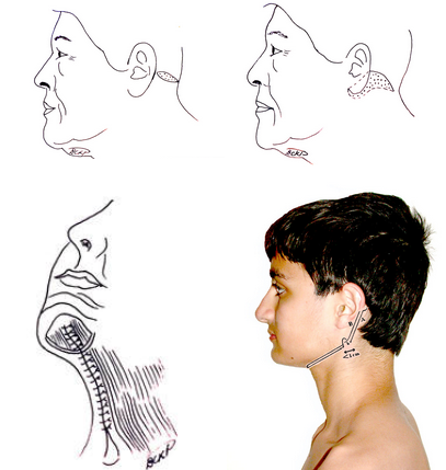 Necklift techniques by Dr. BCK Patel MD