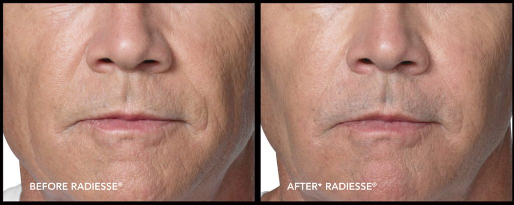 Liquid Face Lift in in salt lake city, Provo, Orem, St  George